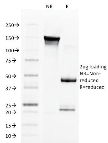 Fig. 3: SDS-PAGE Analysis Purified Aurora B Mouse Monoclonal Antibody (AURKB/1592). Confirmation of Integrity and Purity of Antibody.