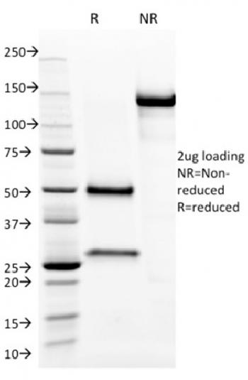Fig. 2: SDS-PAGE Analysis Purified Aurora B Mouse Monoclonal Antibody (AURKB/1593). Confirmation of Purity and Integrity of Antibody.