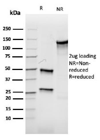 Fig. 4: SDS-PAGE Analysis Purified Aurora B Recombinant Mouse Monoclonal Antibody (rAURKB/1592). Confirmation of Integrity and Purity of Antibody.