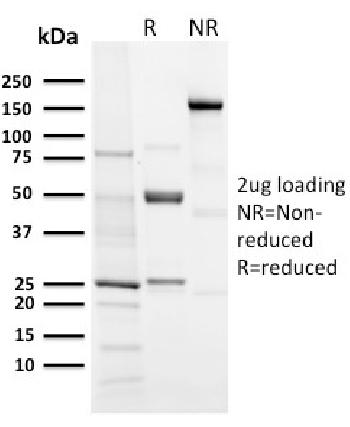 Fig. 2: SDS-PAGE Analysis Purified Aurora B Rabbit Recombinant Monoclonal (AURKB/3121R). Confirmation of Purity and Integrity of Antibody.