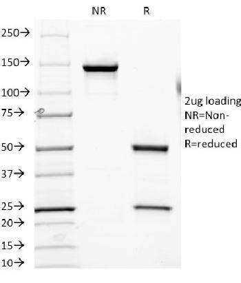 Fig. 1: SDS-PAGE Analysis Purified CD6 Mouse Monoclonal Antibody (SPV-L14).