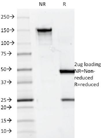 Fig. 1: SDS-PAGE Analysis Purified CD7 Mouse Monoclonal Antibody (124-1D1). Confirmation of Integrity and Purity of Antibody.