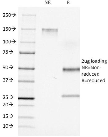 Fig. 1: SDS-PAGE Analysis Purified CD7 Mouse Monoclonal Antibody (C7/511). Confirmation of Integrity and Purity of Antibody.