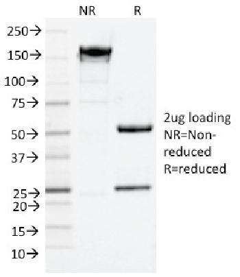 Anti-CD9 (TSPAN29) (Motility-Related Protein-1) Monoclonal Antibody(Clone: CD9/2343)