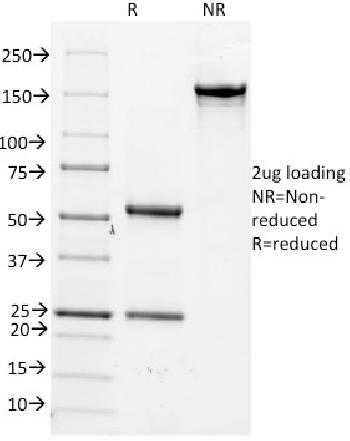 Fig. 3: SDS-PAGE Analysis Purified CD14 Mouse Monoclonal Antibody (LPSR/2386). Confirmation of Integrity and Purity of Antibody.