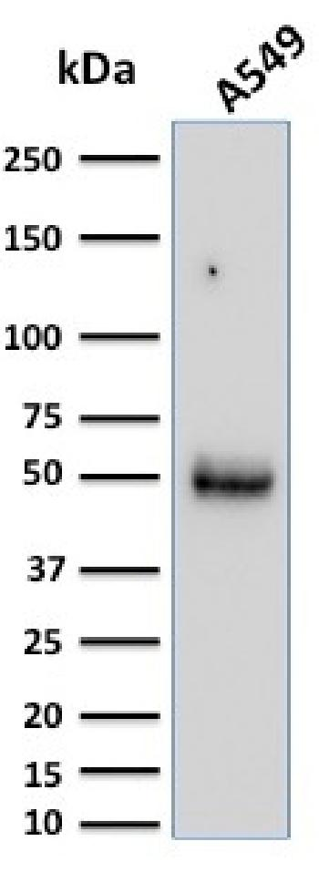 Fig. 4: Western Blot Analysis of A549 cell lysate using CD14 Mouse Monoclonal Antibody (LPSR/2386).