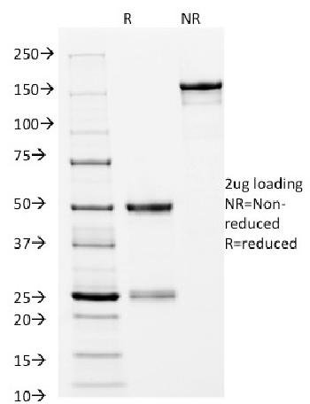 Fig. 3: SDS-PAGE Analysis Purified CD14 Mouse Monoclonal Antibody (LPSR/2397). Confirmation of Integrity and Purity of Antibody.