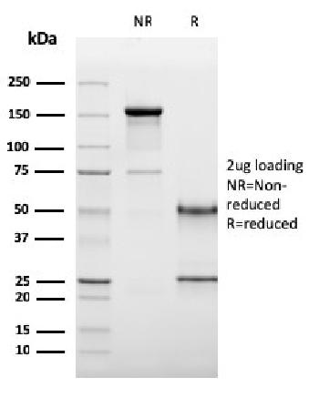 Fig. 3: SDS-PAGE Analysis Purified CD19 Monospecific Mouse Monoclonal Antibody (CD19/3117). Confirmation of Purity and Integrity of Antibody.