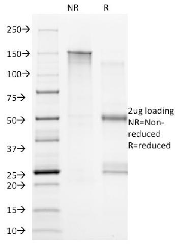 Fig. 1: SDS-PAGE Analysis Purified CD20 Mouse Monoclonal Antibody (B9E9). Confirmation of Integrity and Purity of Antibody.