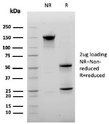 Anti-CD20 / MS4A1 (B-Cell Marker) Monoclonal Antibody(Clone: MS4A1/3410)