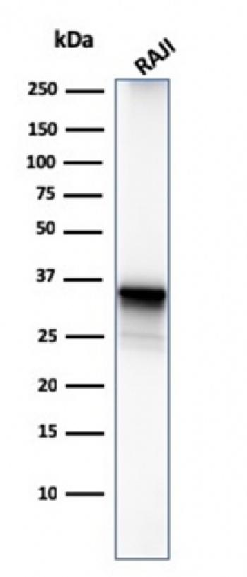 Anti-CD20/ MS4A1 (B-Cell Marker) Monoclonal Antibody(Clone: MS4A1/3411)