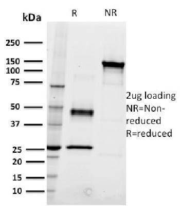 Fig. 1: SDS-PAGE Analysis Purified CD22 Mouse Monoclonal Antibody (RFB4). Confirmation of Integrity and Purity of Antibody.
