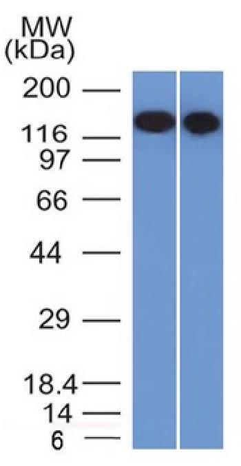 Anti-CD22 / BL-CAM (B-Cell Marker) Monoclonal Antibody(Clone: BLCAM/1795)