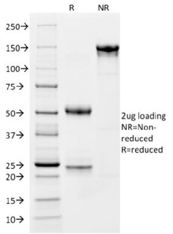 Fig. 3: SDS-PAGE Analysis Purified CD163 Mouse Monoclonal Antibody (M130/1210). Confirmation of Integrity and Purity of Antibody.