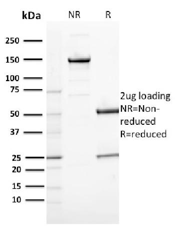 Fig. 3: SDS-PAGE Analysis Purified CD163 Mouse Monoclonal Antibody (M130/2164). Confirmation of Purity and Integrity of Antibody.