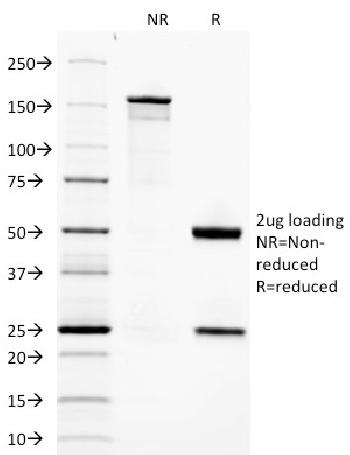 Fig. 3: SDS-PAGE Analysis Purified Adiponectin Mouse Monoclonal Antibody (ADPN/1370). Confirmation of Integrity and Purity of Antibody.