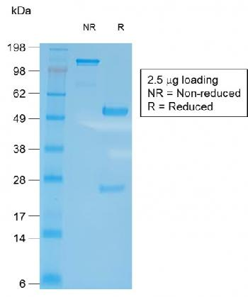 Fig. 2: SDS-PAGE Analysis of Purified CD27 Rabbit Recombinant Monoclonal Antibody (LPFS2/2034R). Confirmation of Integrity and Purity of Antibody.