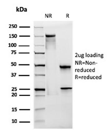 Fig. 3: SDS-PAGE Analysis Purified CD28 Mouse Monoclonal Antibody (CB28). Confirmation of Integrity and Purity of Antibody.