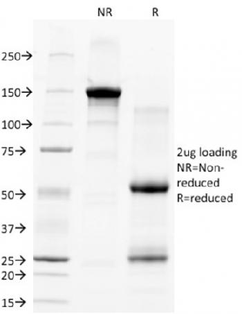 Fig. 1: SDS-PAGE Analysis Purified CD28 Mouse Monoclonal Antibody (C28/77). Confirmation of Integrity and Purity of Antibody.