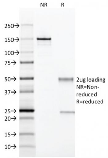 Fig. 3: SDS-PAGE Analysis Purified CD28 Mouse Monoclonal Antibody (204.12). Confirmation of Integrity and Purity of Antibody.