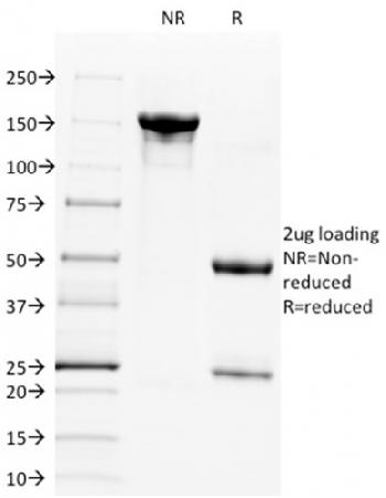 Fig. 2: SDS-PAGE Analysis Purified CD28 Mouse Monoclonal Antibody (C28/1636). Confirmation of Integrity and Purity of Antibody.
