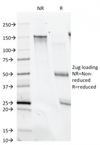 Fig. 1: SDS-PAGE Analysis Purified CD28 Mouse Monoclonal Antibody (C28/74). Confirmation of Integrity and Purity of Antibody.