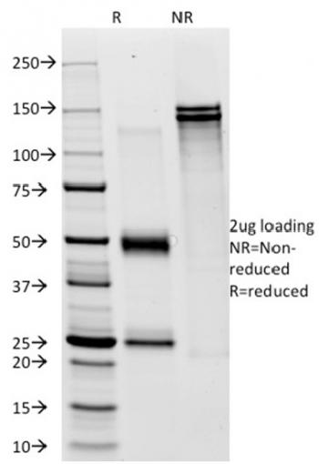 Fig. 2: SDS-PAGE Analysis Purified CD28 Mouse Monoclonal Antibody (C28/76). Confirmation of Integrity and Purity of Antibody.