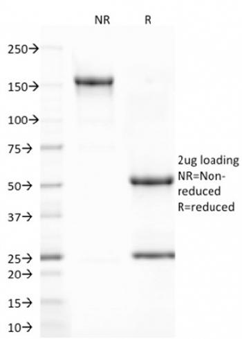Fig. 1: SDS-PAGE Analysis Purified CD80 Mouse Monoclonal Antibody (C80/2723). Confirmation of Integrity and Purity of Antibody.