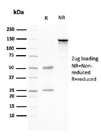 Fig. 1: SDS-PAGE Analysis Purified CD80 Mouse Monoclonal Antibody (C80/2776). Confirmation of Purity and Integrity of Antibody