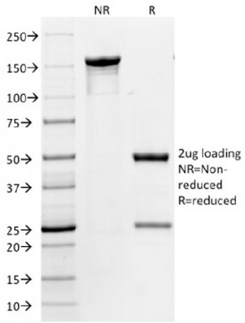 Fig. 4: SDS-PAGE Analysis Purified CD86 Mouse Monoclonal Antibody (BU63). Confirmation of Integrity and Purity of Antibody.