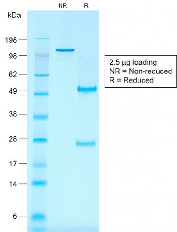 Fig. 2: SDS-PAGE Analysis Purified CD30 Mouse Recombinant Monoclonal Antibody (rKi-1/779). Confirmation of Purity and Integrity of Antibody.