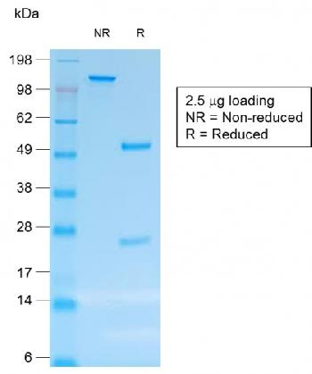 Anti-CD30 / TNFRSF8 (Hodgkin & Reed-Sternberg Cell Marker) Monoclonal Antibody(Clone: rCD30/412)
