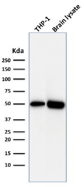 Fig. 5: Western Blot Analysis of THP1 cell lysate and Brain tissue lysate using ATG5 Mouse Monoclonal Antibody (ATG5/2492).