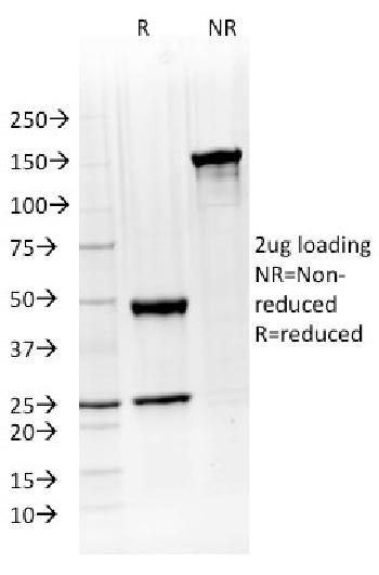 Fig. 6: SDS-PAGE Analysis Purified ATG5 Mouse Monoclonal Antibody (ATG5/2492). Confirmation of Purity and Integrity of Antibody.