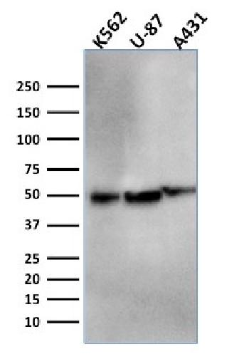 Fig. 5: Western Blot Analysis of K562, U-87, A431 cell lysates using ATG5 Mouse Monoclonal Antibody (ATG5/2553).