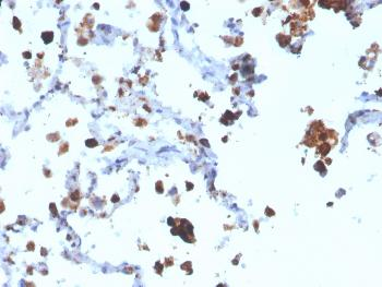 Fig. 1: Formalin-fixed, paraffin-embedded human Lung Adenocarcinoma stained with Napsin A Mouse Monoclonal Antibody (NAPSA/3308).
