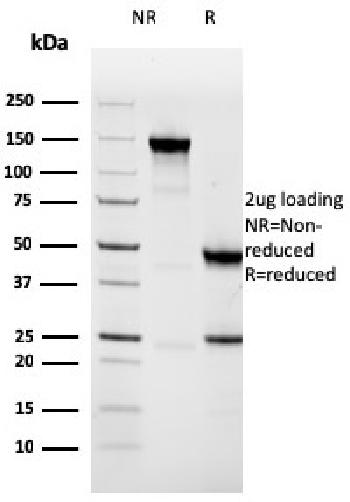 Fig. 2: SDS-PAGE Analysis Purified Napsin A Mouse Monoclonal Antibody (NAPSA/3308). Confirmation of Purity and Integrity of Antibody