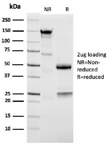 Fig. 2: SDS-PAGE Analysis Purified Napsin A Mouse Monoclonal Antibody (NAPSA/3309). Confirmation of Purity and Integrity of Antibody