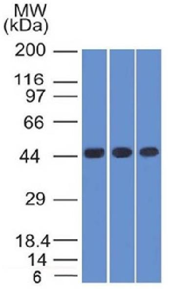 Fig. 1: Western Blot of K562, HEK293 andA549 cell lysates Using Napsin A Mouse Monoclonal Antibody (NAPSA/1238).