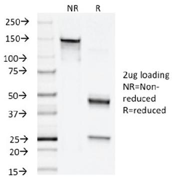 Fig. 3: SDS-PAGE Analysis Purified Napsin A Mouse Monoclonal Antibody (NAPSA/1238). Confirmation of Integrity and Purity of Antibody.