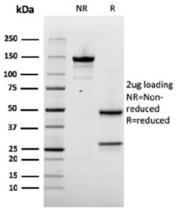 Fig. 2: SDS-PAGE Analysis Purified Napsin A Mouse Monoclonal Antibody (rNAPSA/1239). Confirmation of Integrity and Purity of Antibody.