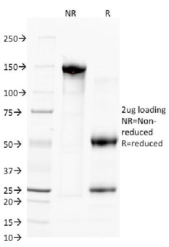 Fig. 1: SDS-PAGE Analysis Purified CD38 Mouse Monoclonal Antibody (FS02). Confirmation of Purity and Integrity of Antibody.