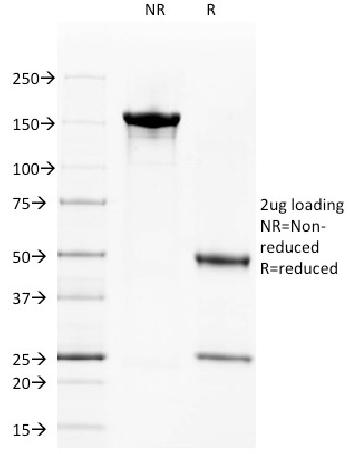 Fig. 4: SDS-PAGE Analysis Purified CD40 Mouse Monoclonal Antibody (C40/1605). Confirmation of Integrity and Purity of Antibody.