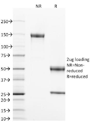 Fig. 1: SDS-PAGE Analysis Purified CD40 Mouse Monoclonal Antibody (T8P2G4*A6). Confirmation of Integrity and Purity of Antibody.
