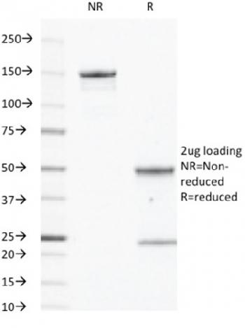 Fig. 2: SDS-PAGE Analysis Purified CD40 Mouse Monoclonal Antibody (C40/2383). Confirmation of Integrity and Purity of Antibody.