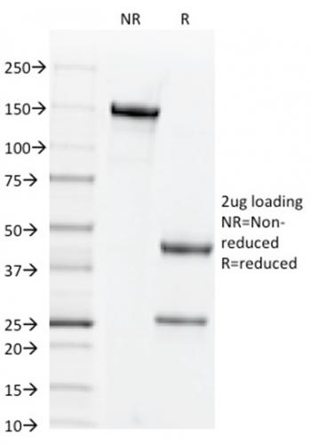 Fig. 1: SDS-PAGE Analysis Purified CD44v4 Mouse Monoclonal Antibody (2F10). Confirmation of Purity and Integrity of Antibody.