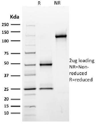 Fig. 2: SDS-PAGE Analysis Purified CD44 Mouse Monoclonal Antibody (BU75). Confirmation of Purity and Integrity of Antibody.