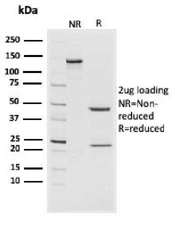Fig. 3: SDS-PAGE Analysis Purified CD44v4/5 Mouse Monoclonal Antibody (3D2). Confirmation of Purity and Integrity of Antibody.