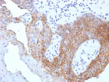 Fig. 2: Formalin-fixed, paraffin-embedded human Tongue Carcinoma stained with CD44 Mouse Monoclonal Antibody (CD44v9/1459).