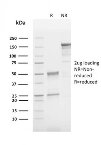 Fig. 2: SDS-PAGE Analysis Purified CD63 Mouse Monoclonal Antibody (LAMP3/2790). Confirmation of Integrity and Purity of Antibody.
